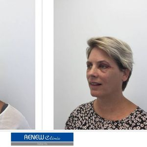 Renew Clinic image 2